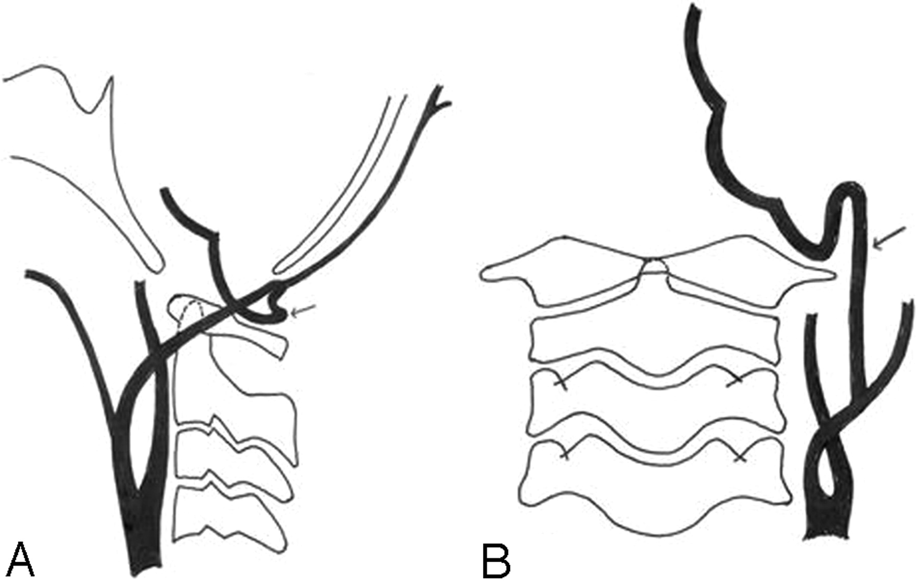 Proatlantal Intersegmental Arteries Of External Carotid Artery