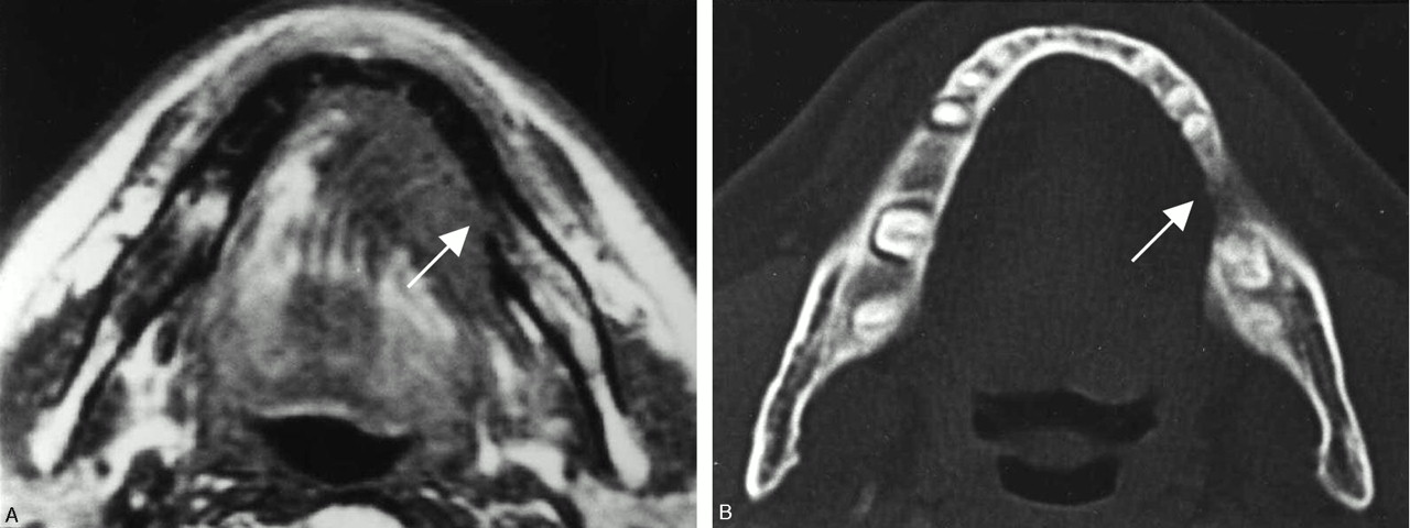 A Potential Pitfall Of Mr Imaging For Assessing Mandibular