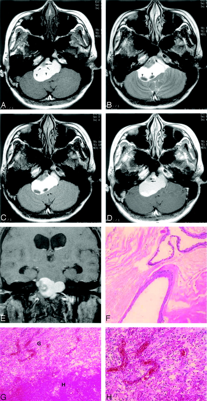 Intracranial Epidermoid Cyst with Hemorrhage: MR Imaging