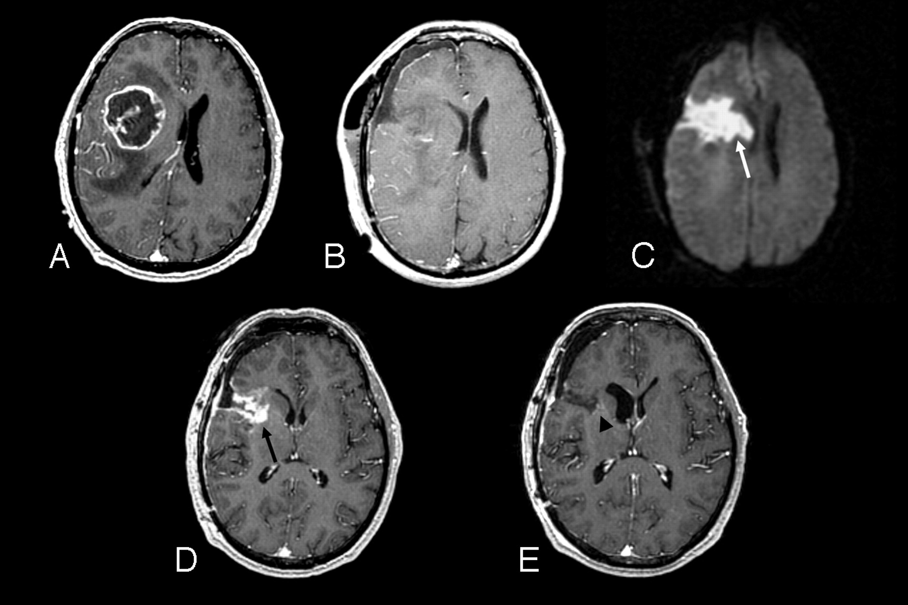 Update On Brain Tumor Imaging From Anatomy To Physiology American