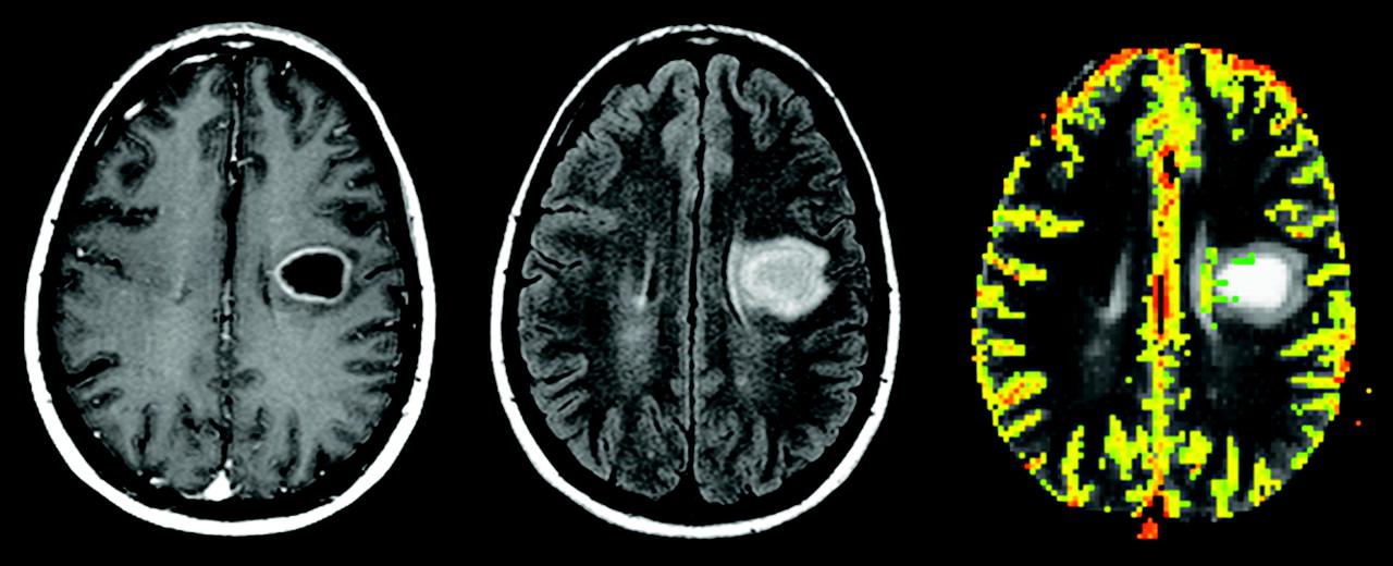 Update on Brain Tumor Imaging: From Anatomy to Physiology | American ...