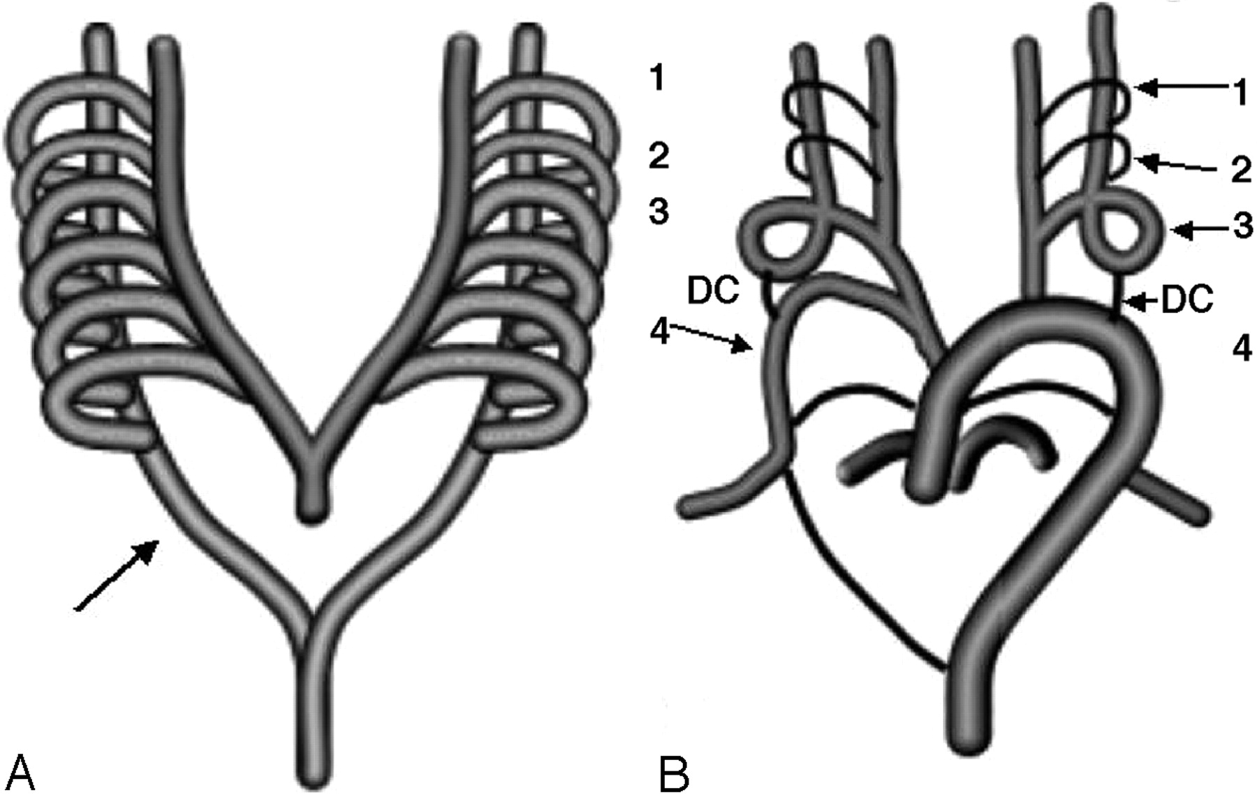 Absence of the Left Common Carotid Artery with Cervical