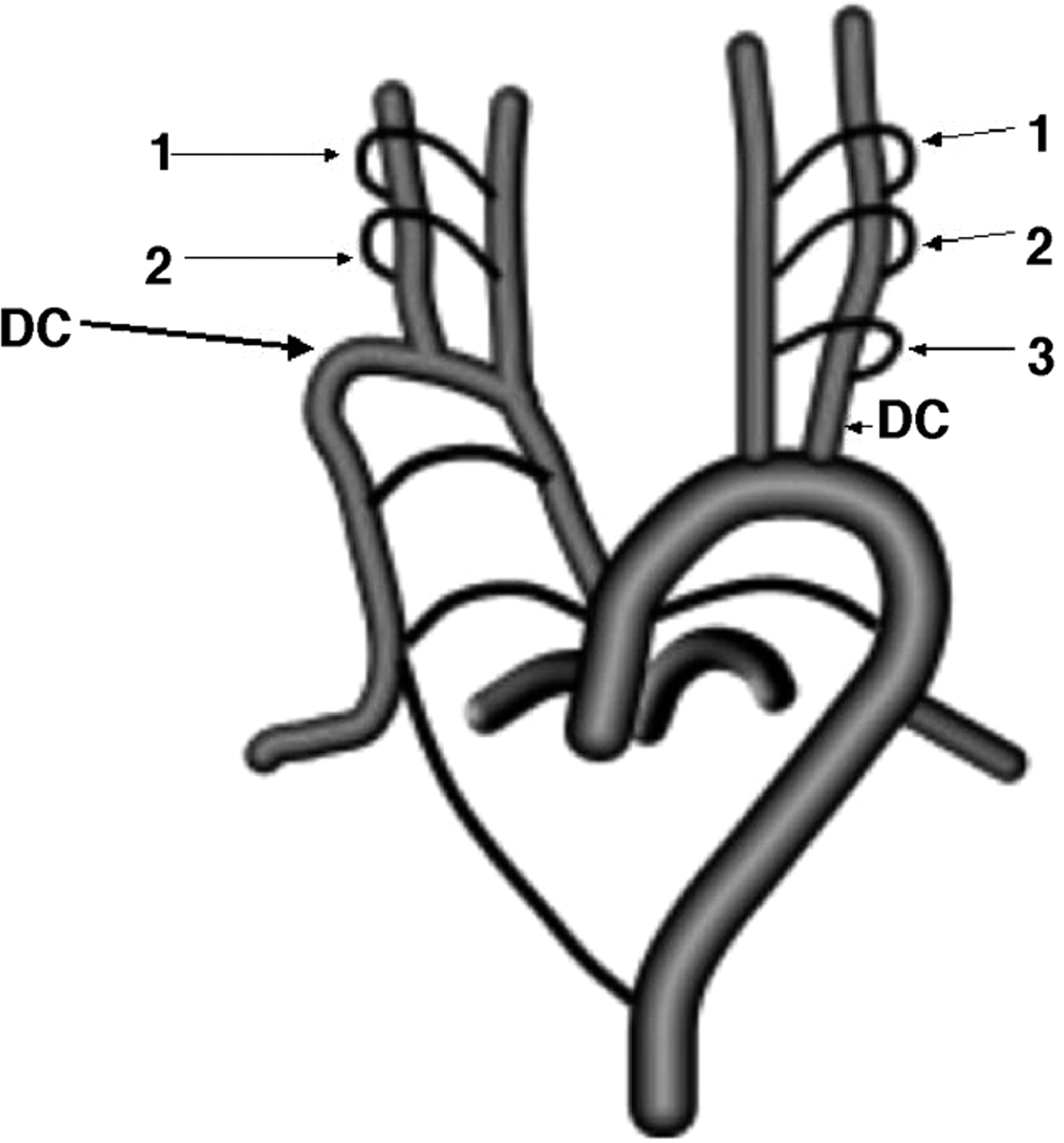 Fig 9 Absence Of The Left Common Carotid Artery With Cervical