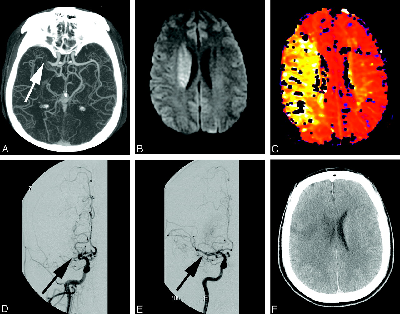 "Imaging-Guided Acute Ischemic Stroke Therapy: From ""Time Is Brain ..."