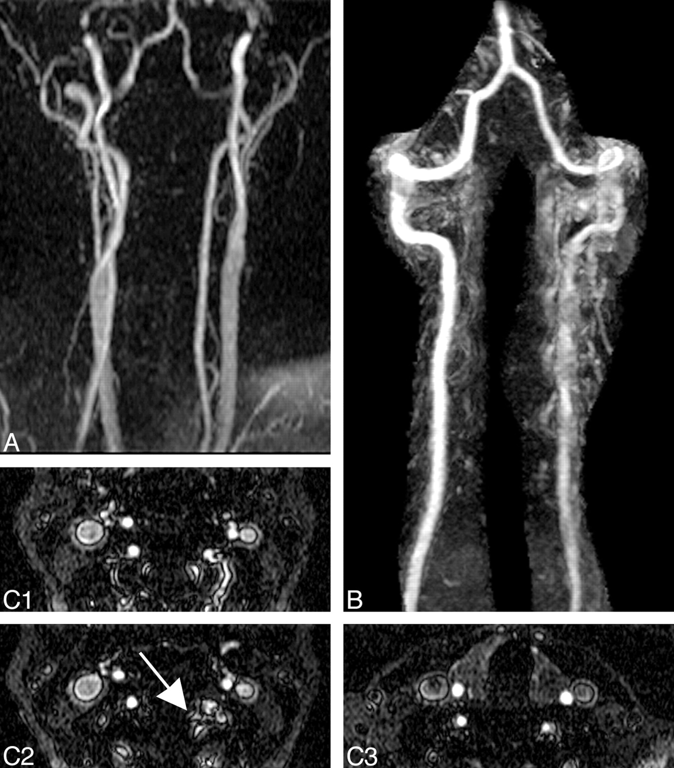 Feathering Vertebral Artery Pseudostenosis With Elliptical Centric