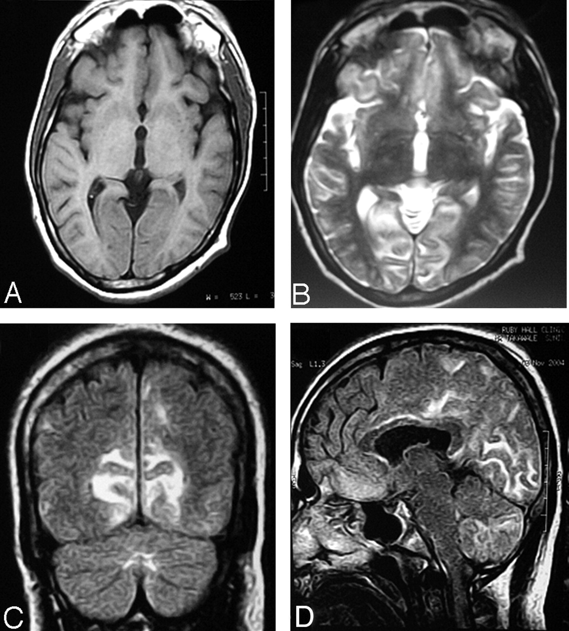 What is vascular encephalopathy, the reasons for its appearance
