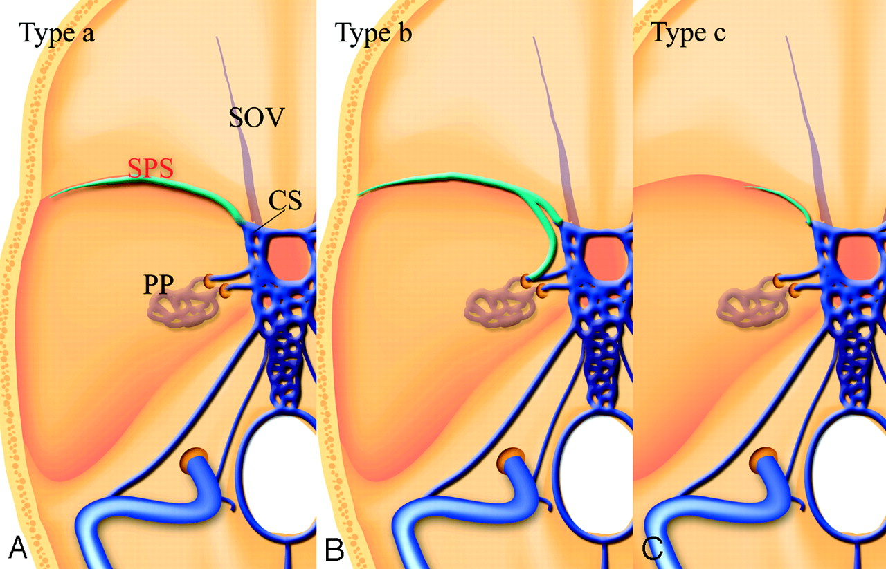 Para-Cavernous Sinus Venous Structures: Anatomic Variations and ...