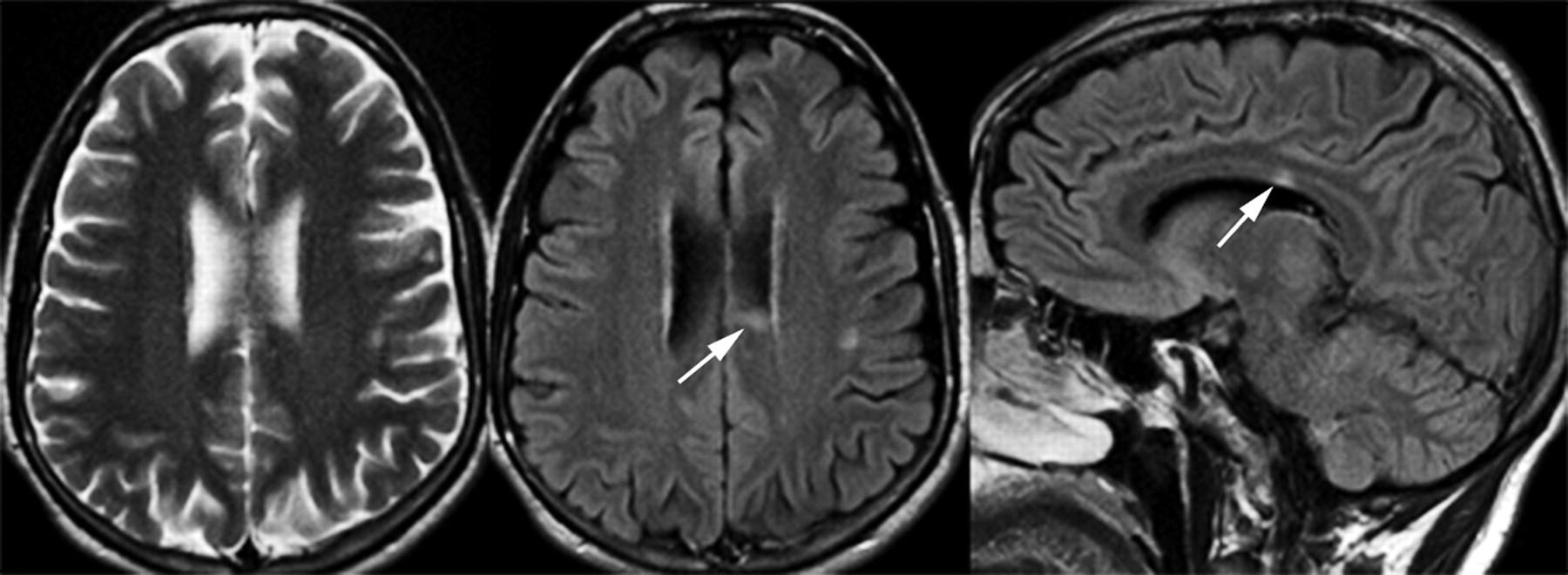 multiple sclerosis the role of mr imaging american journal of