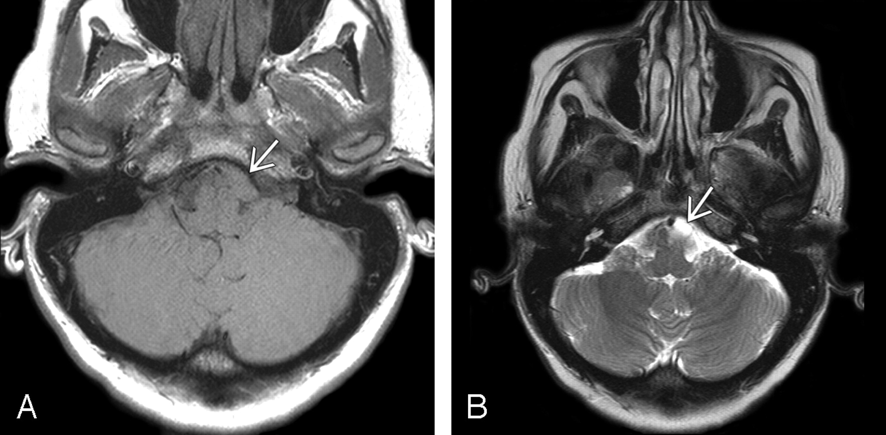Intracranial Neurenteric Cysts Imaging And Pathology Spectrum