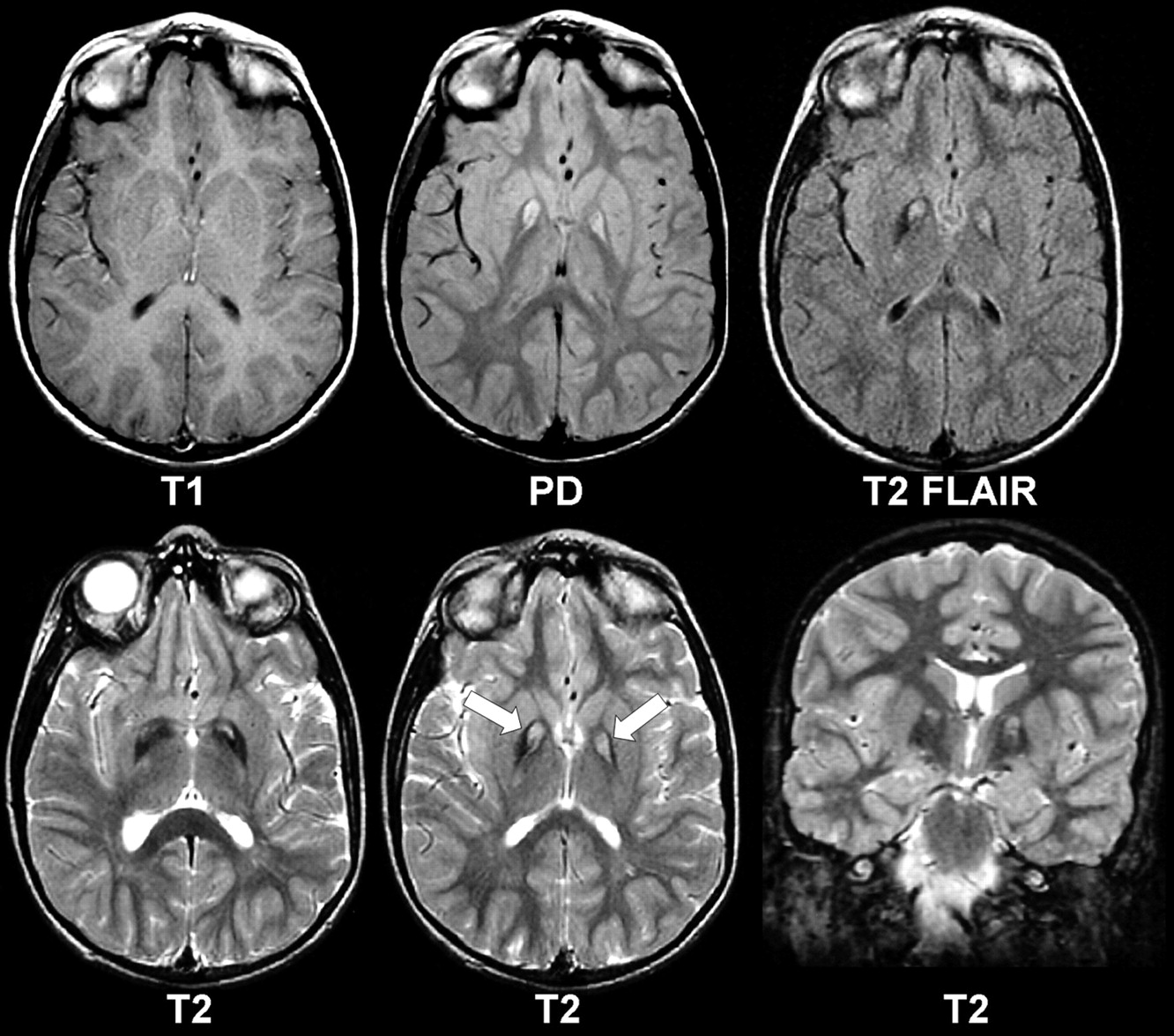 Brain MRI in Neurodegeneration with Brain Iron Accumulation with and ...