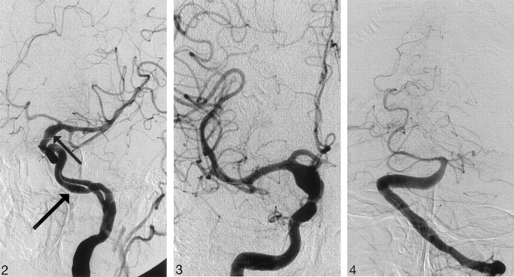 Basilar and Bilateral Carotid Dolichoectasia with Spontaneous ...