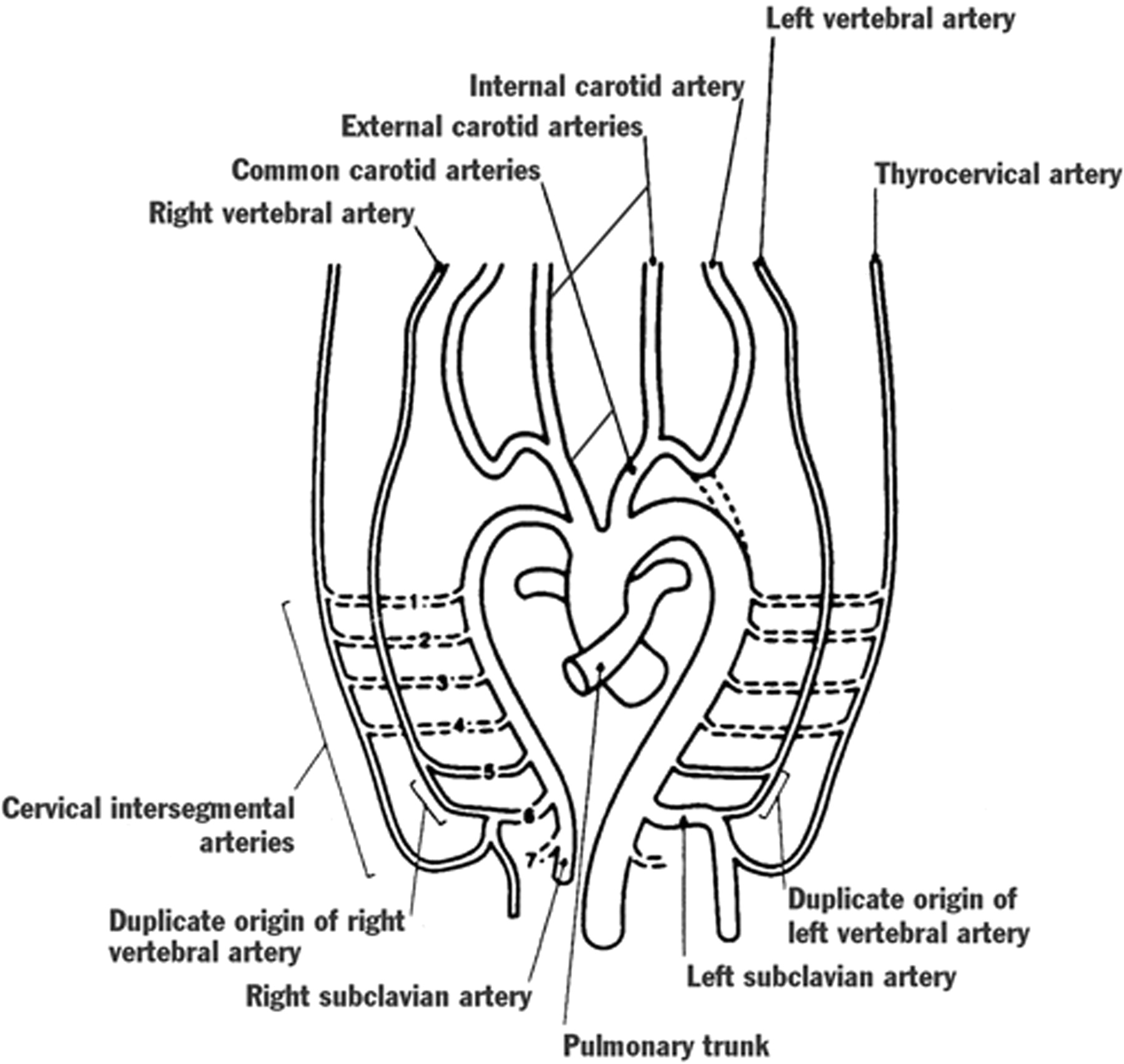 Mr Angiographic Demonstration Of Bilateral Duplication Of The