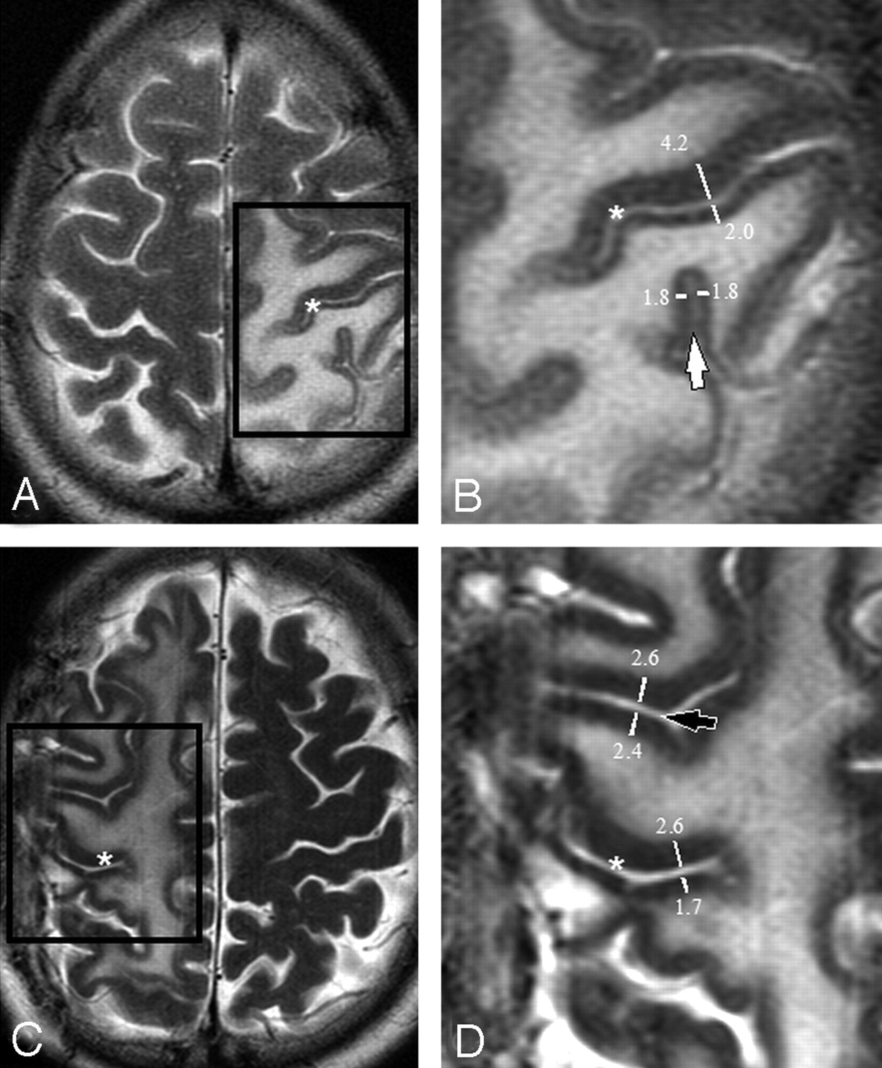 Differential Cortical Thickness across the Central Sulcus: A Method ...