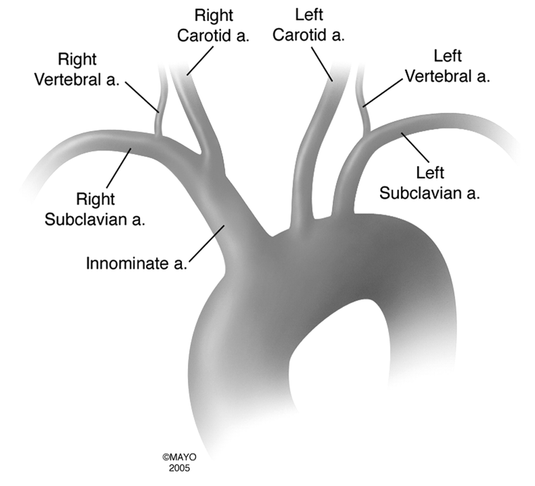 Bovine Aortic Arch Variant in Humans: Clarification of a Common ...