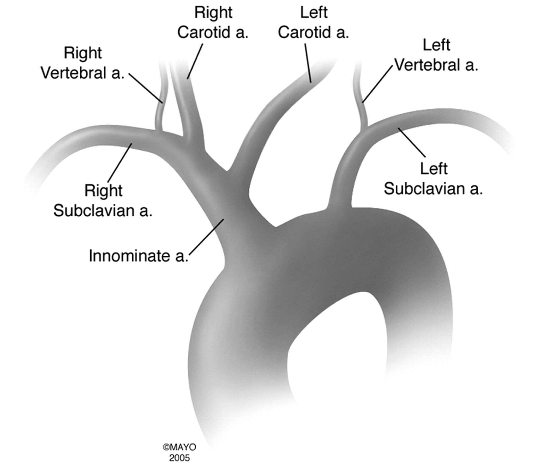 bovine aortic arch variant in humans: clarification of a common, Human Body
