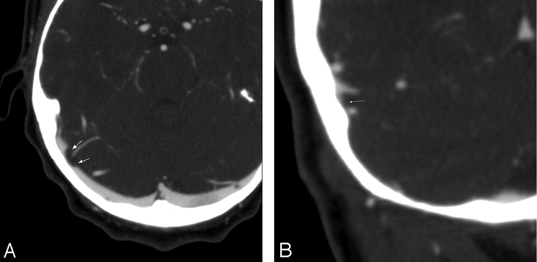 CT Arteriography and Venography in Pulsatile Tinnitus