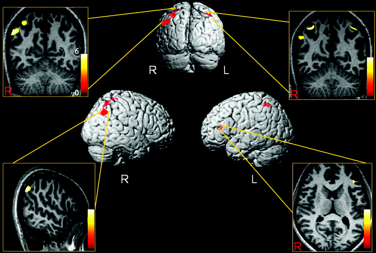 Gray Matter Density Increases During >> Increased Gray Matter Density In The Parietal Cortex Of