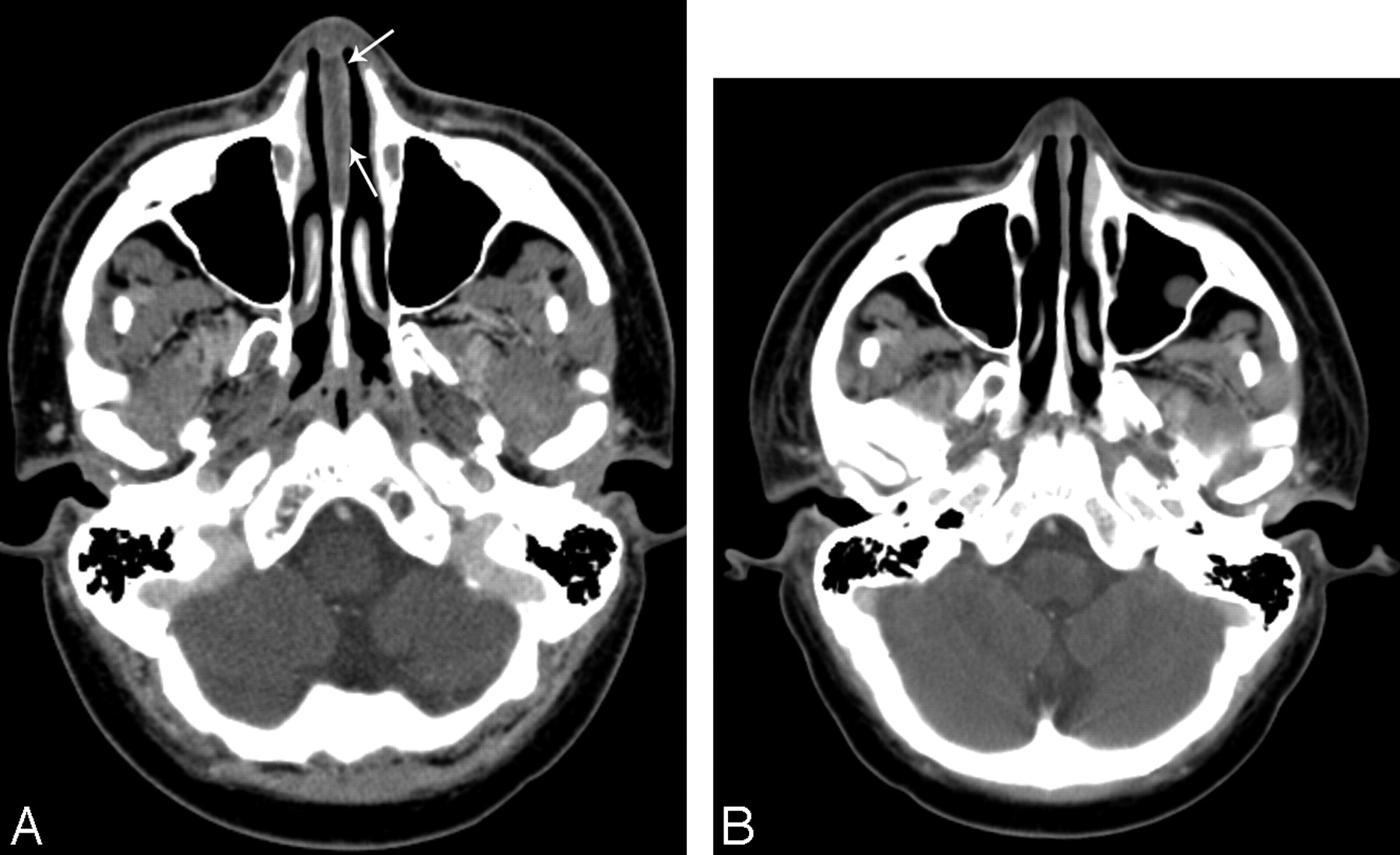 Nasal Septal Abscess In Patients With Immunosuppression American