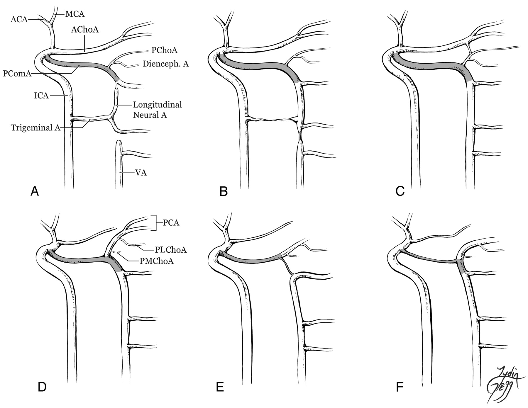 Bilateral Segmental Agenesis of the Vertebrobasilar Junction ...