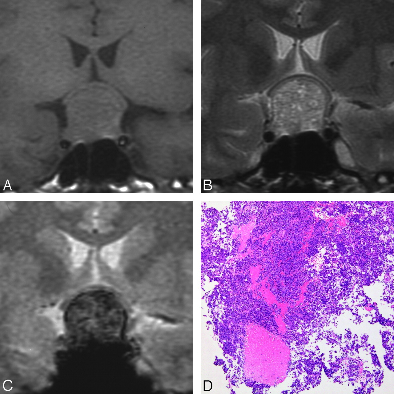 Assessment of Hemorrhage in Pituitary Macroadenoma by T2*-Weighted