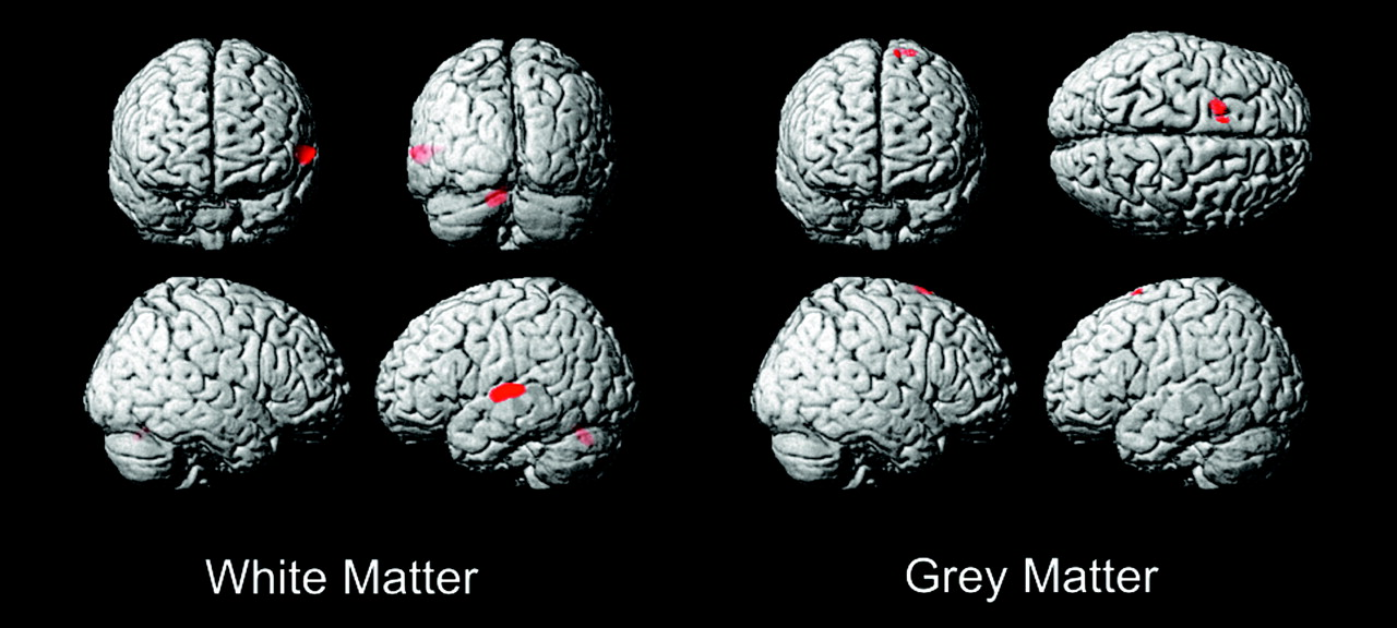 Differences in Brain Structure in Deaf Persons on MR Imaging