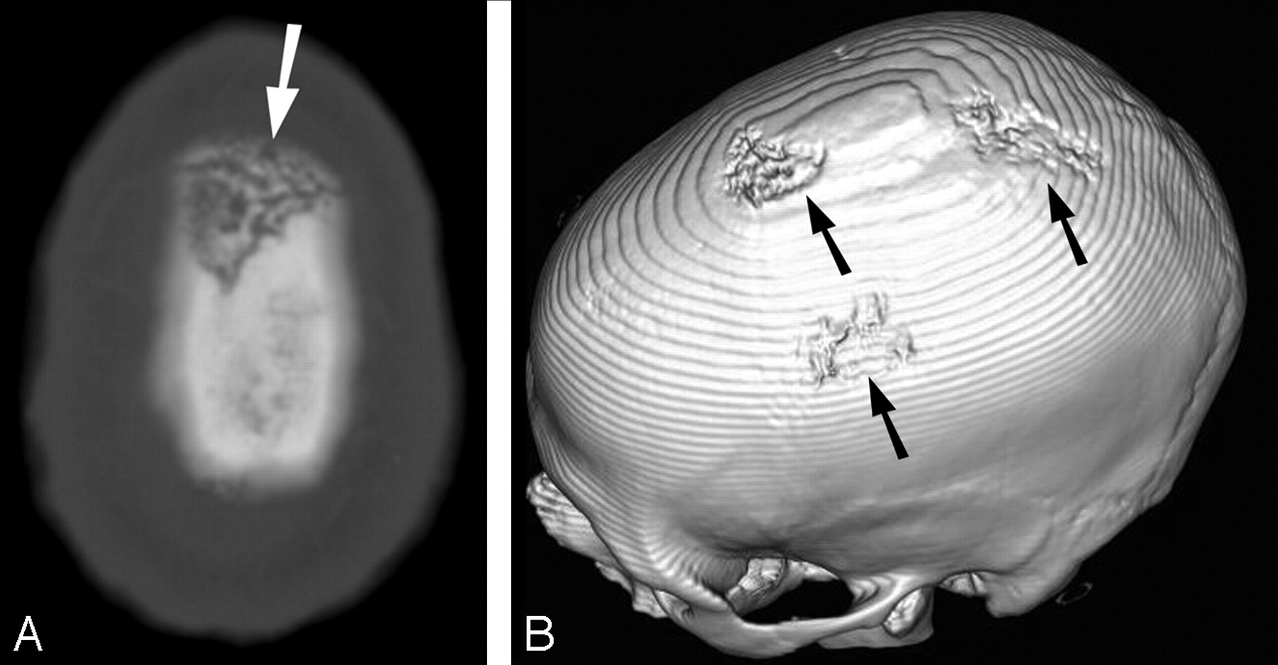Osteomyelitis of the Skull in Early-Acquired Syphilis ...
