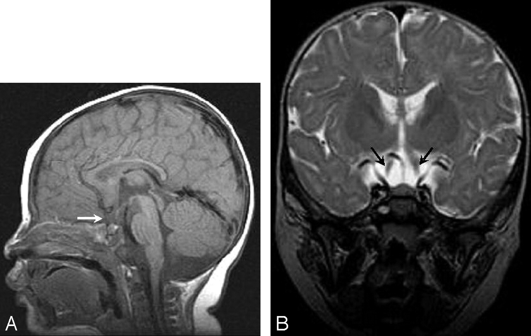 Isolated Absence of the Optic Chiasm: A Rare Cause of Congenital