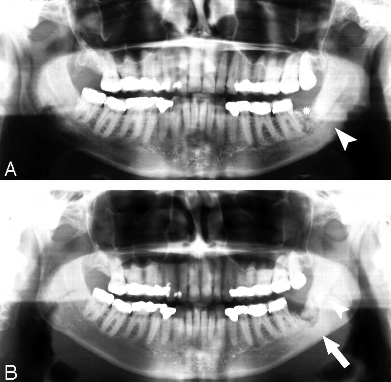 Fig 4 Imaging Findings Of Bisphosphonate Associated Osteonecrosis Of The Jaws American Journal Of Neuroradiology