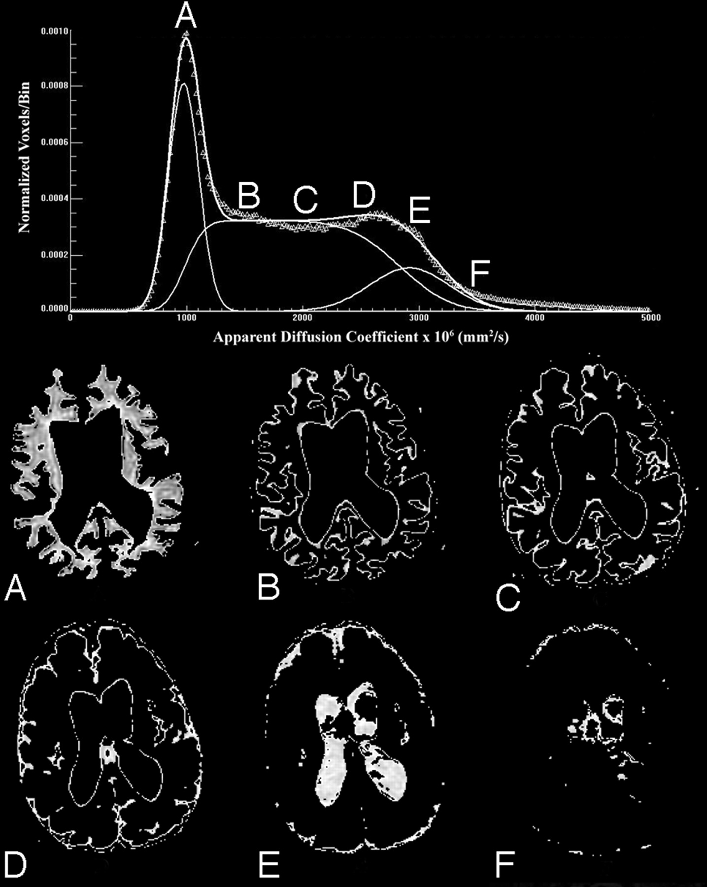 effect of fat assessment of apparent diffusion coefficient Mr imaging assessment of lumbar intervertebral disk degeneration and age-related changes: apparent diffusion coefficient versus t2 quantitation.