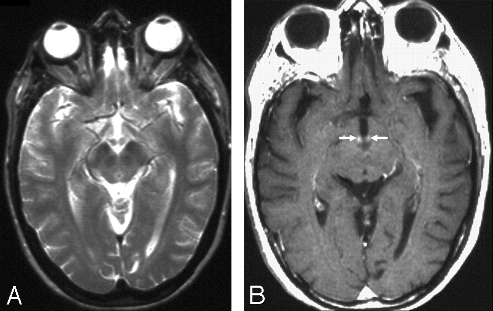 wernicke encephalopathy  mr findings at clinical