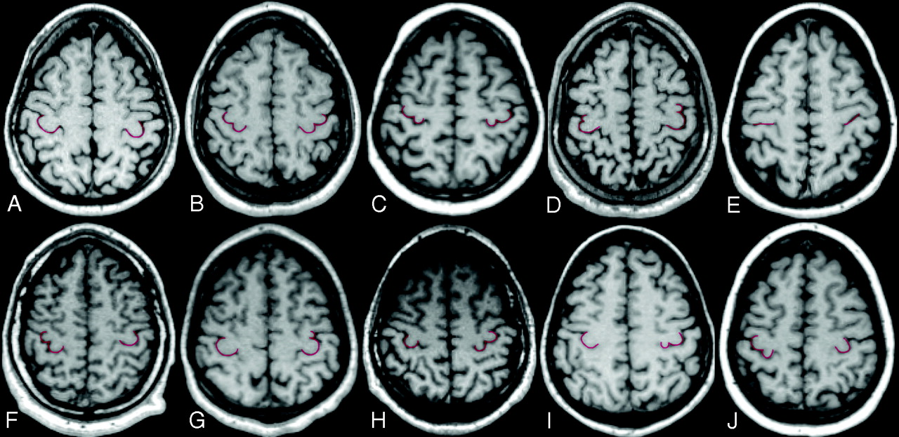 New Morphologic Variants Of The Hand Motor Cortex As Seen With Mr