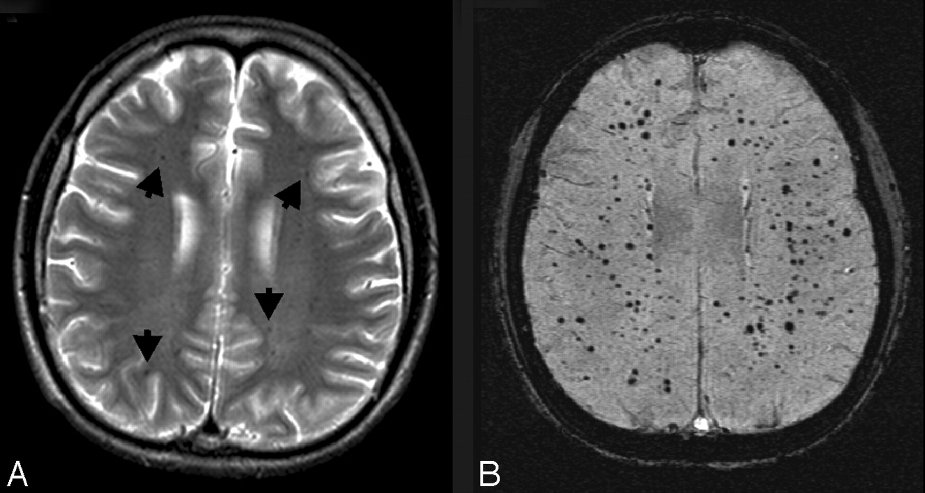 Susceptibility-Weighted MR Imaging: A Review of Clinical ...