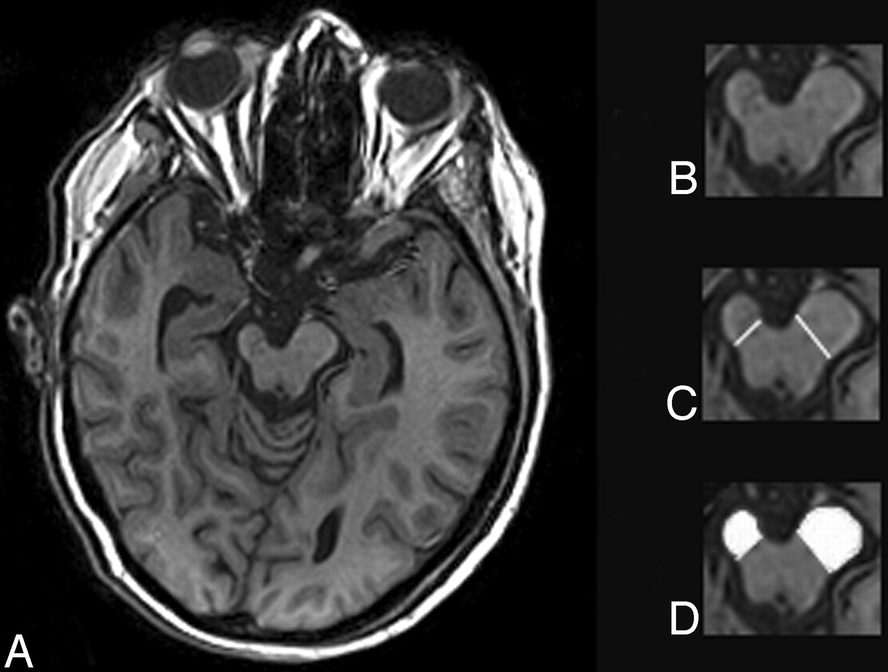 Poststroke Cerebral Peduncular Atrophy Correlates with a Measure of ...