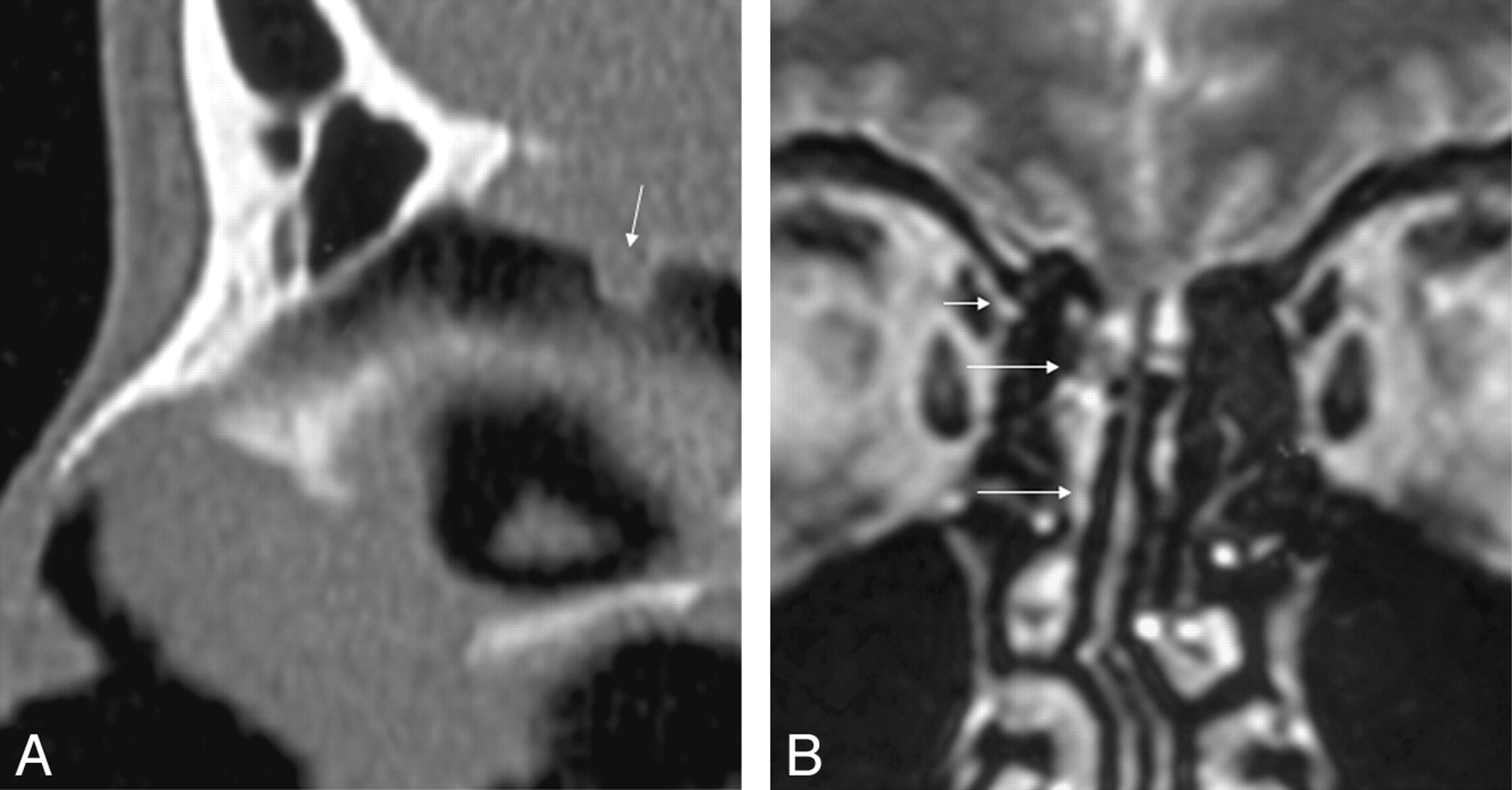 Nontraumatic Skull Base Defects With Spontaneous CSF Rhinorrhea and ...