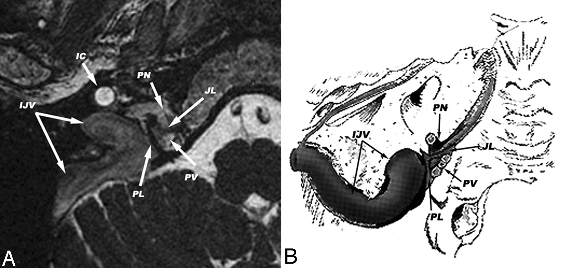 Identification Of The Normal Jugular Foramen And Lower Cranial Nerve