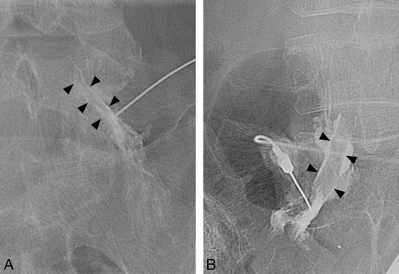 Value of Diagnostic Lumbar Selective Nerve Root Block: A Prospective ...