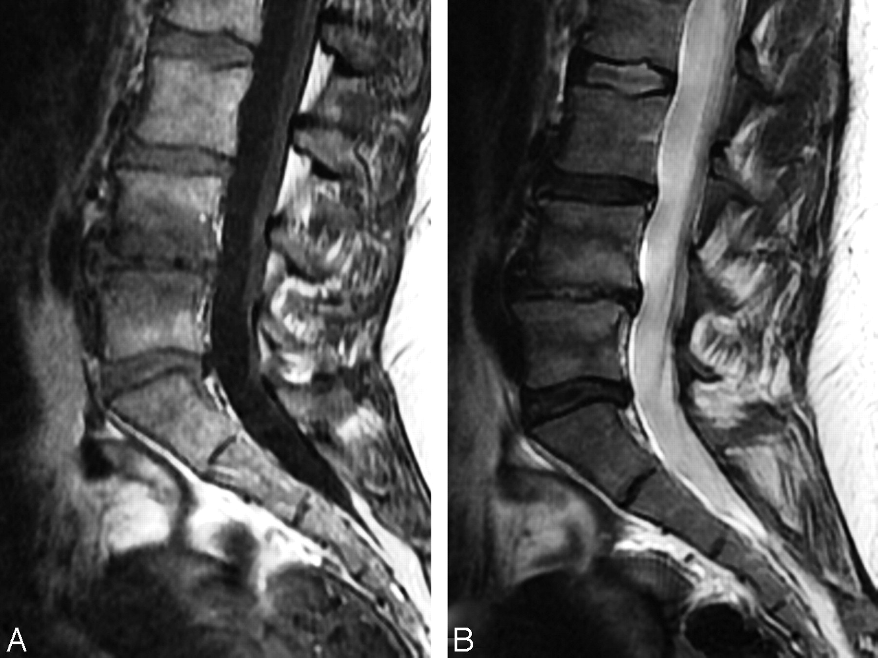 define retrolisthesis at l5-s1 Retrolisthesis is a relatively rare degenerative spinal disc condition that originates in the lower area of the spine the condition may cause lower back.