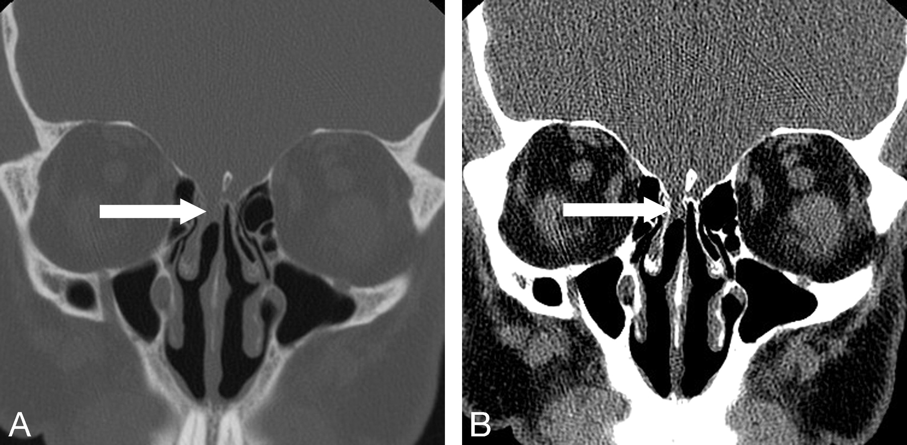 Focal Opacification of the Olfactory Recess on Sinus CT: Just an ...