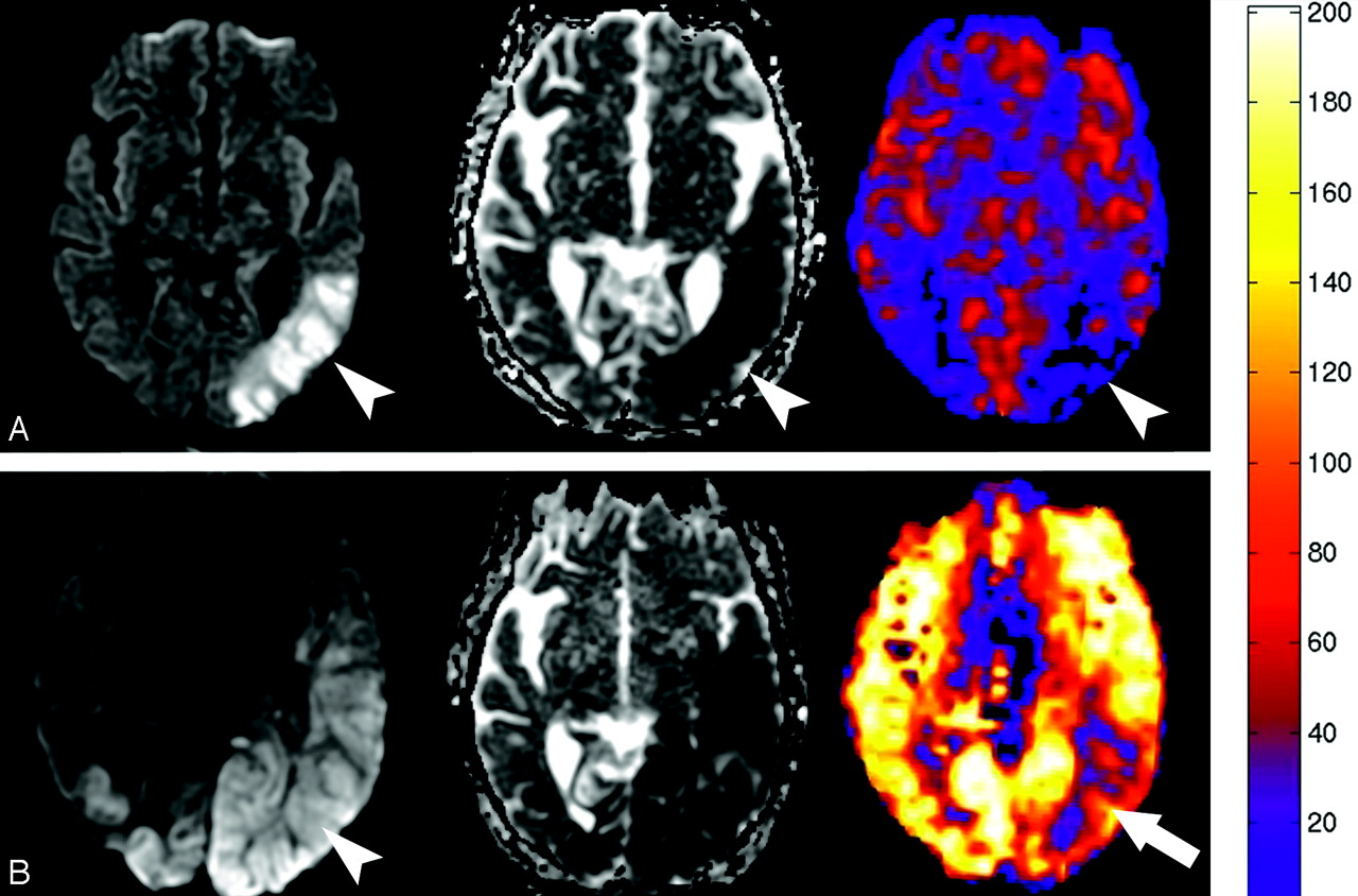 Anoxic Injury Associated Cerebral Hyperperfusion Identified With