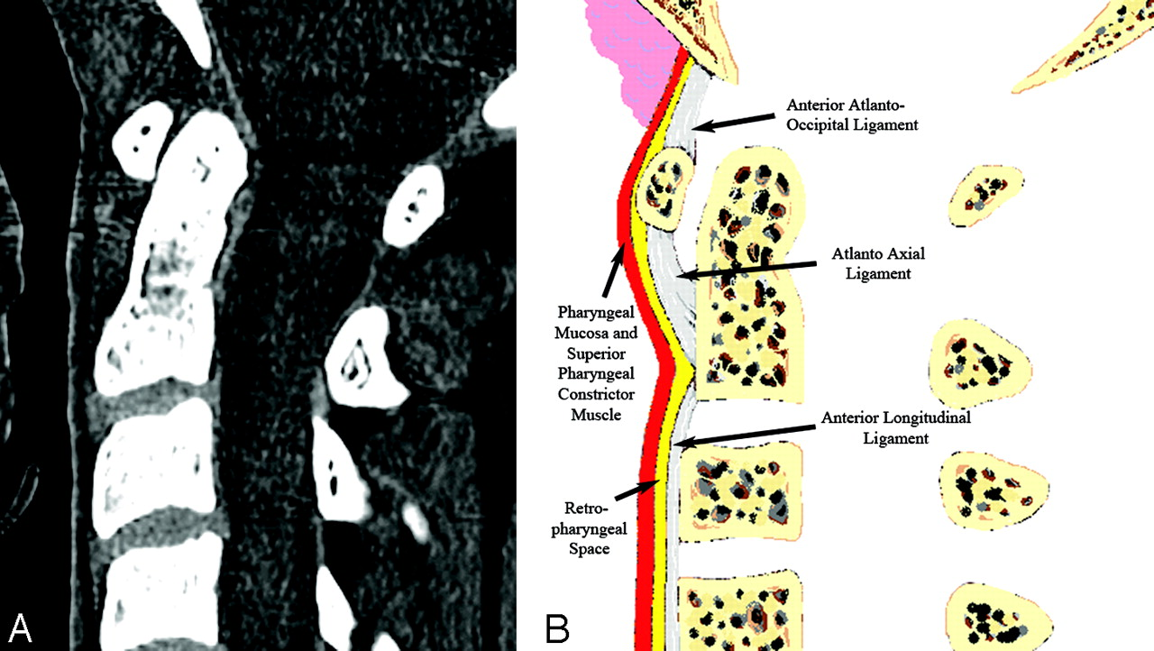 Normal Thickness and Appearance of the Prevertebral Soft Tissues on ...