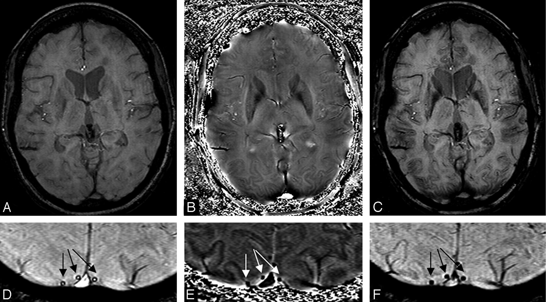 Susceptibility-Weighted Imaging: Technical Aspects and