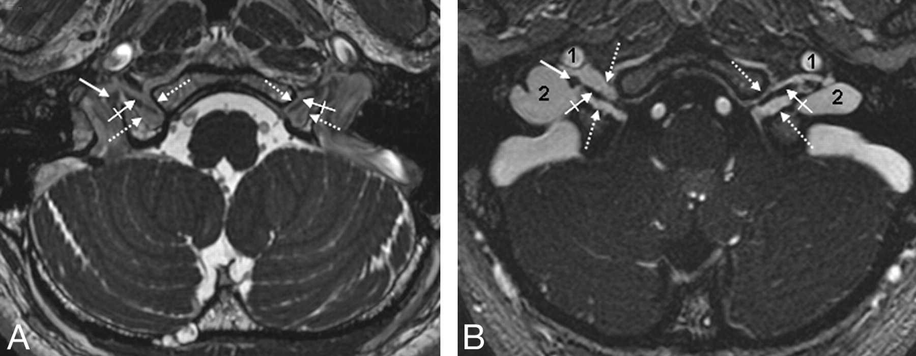The Jugular Foramen Imaging Strategy And Detailed Anatomy At 3t