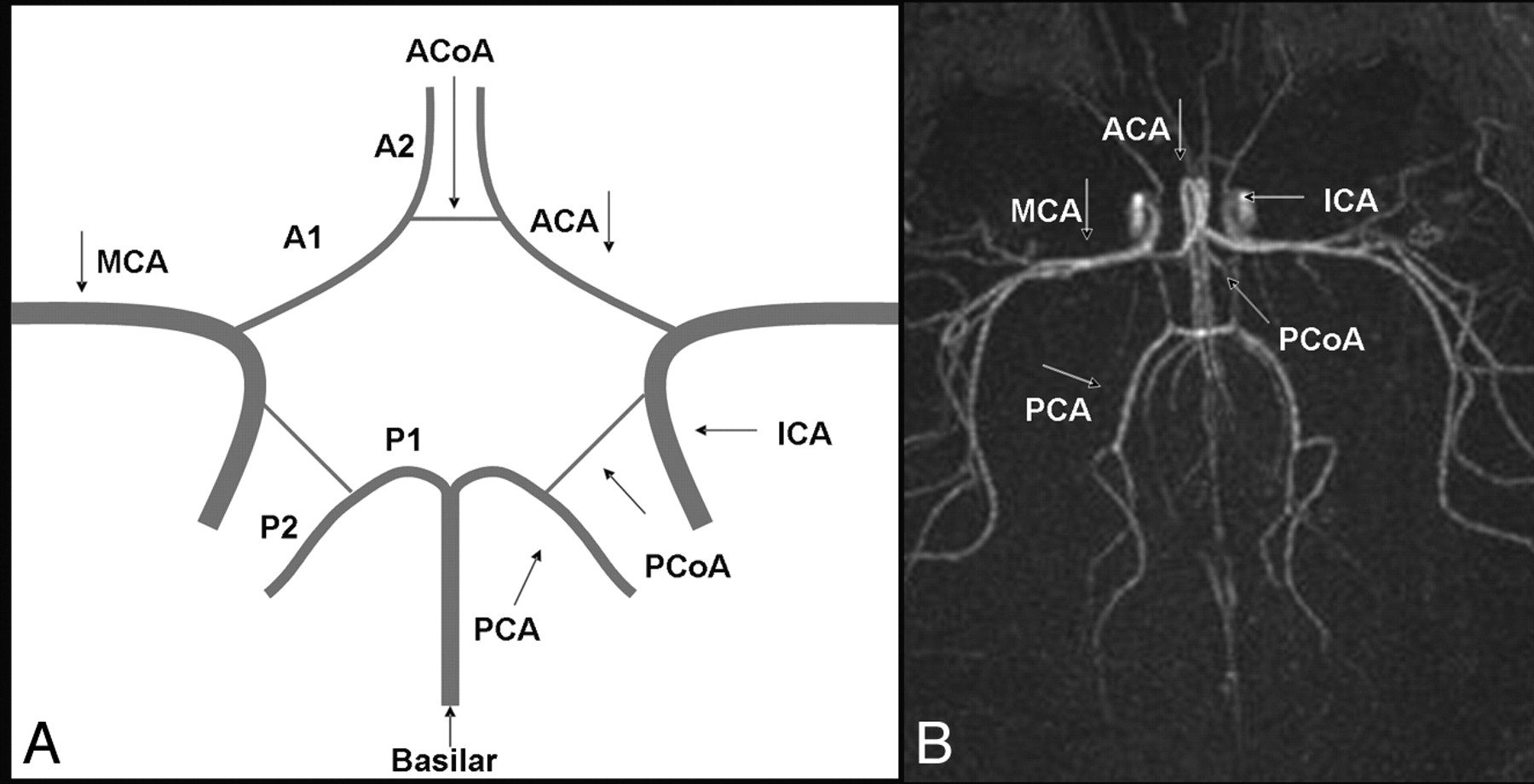 The Anatomic Variations of the Circle of Willis in Preterm-at-Term ...
