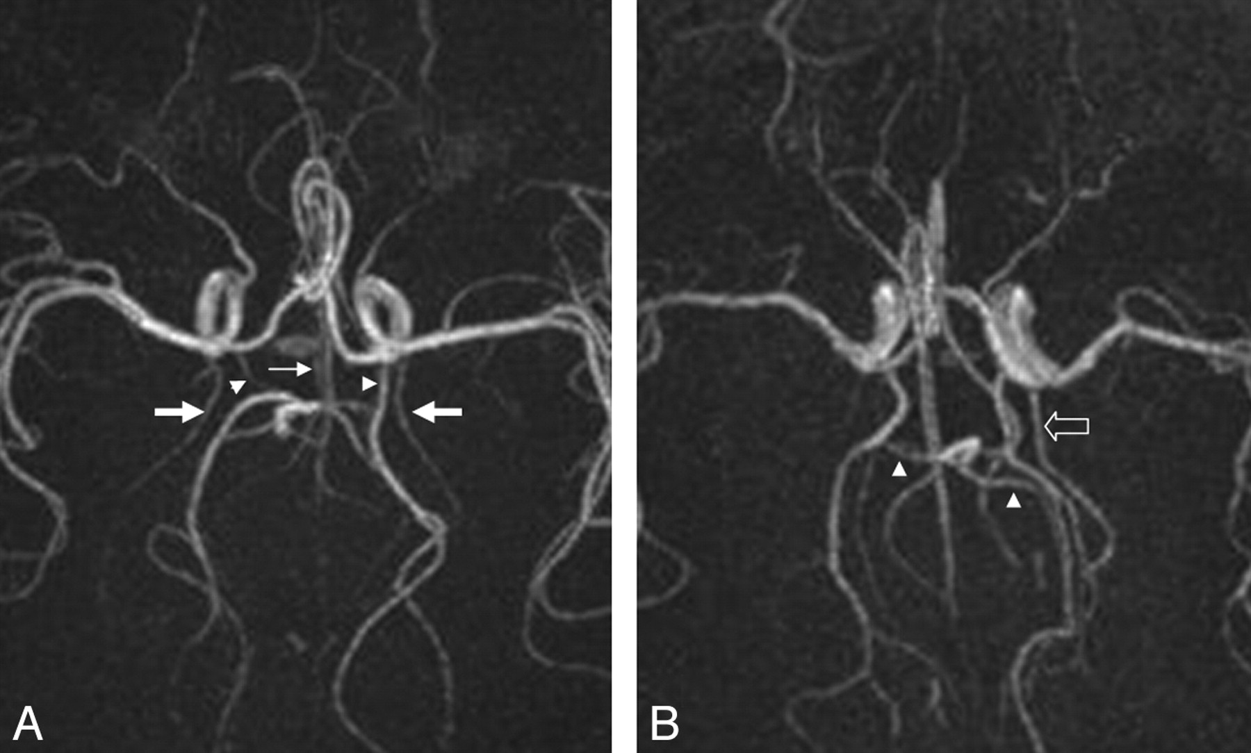 The Anatomic Variations Of The Circle Of Willis In Preterm At Term