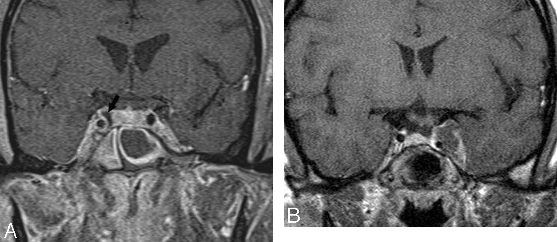 Imaging Lesions of the Cavernous Sinus | American Journal of ...