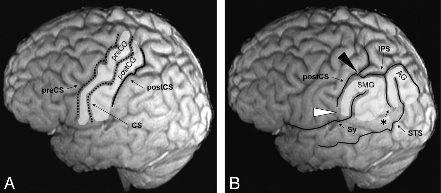 Topographic Analysis Of The Inferior Parietal Lobule In High