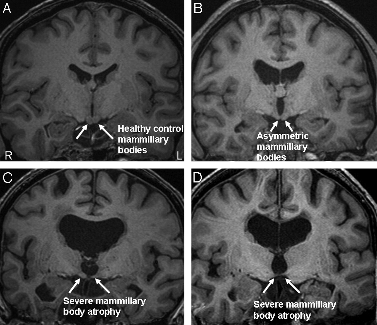 The Frequency and Extent of Mammillary Body Atrophy ...