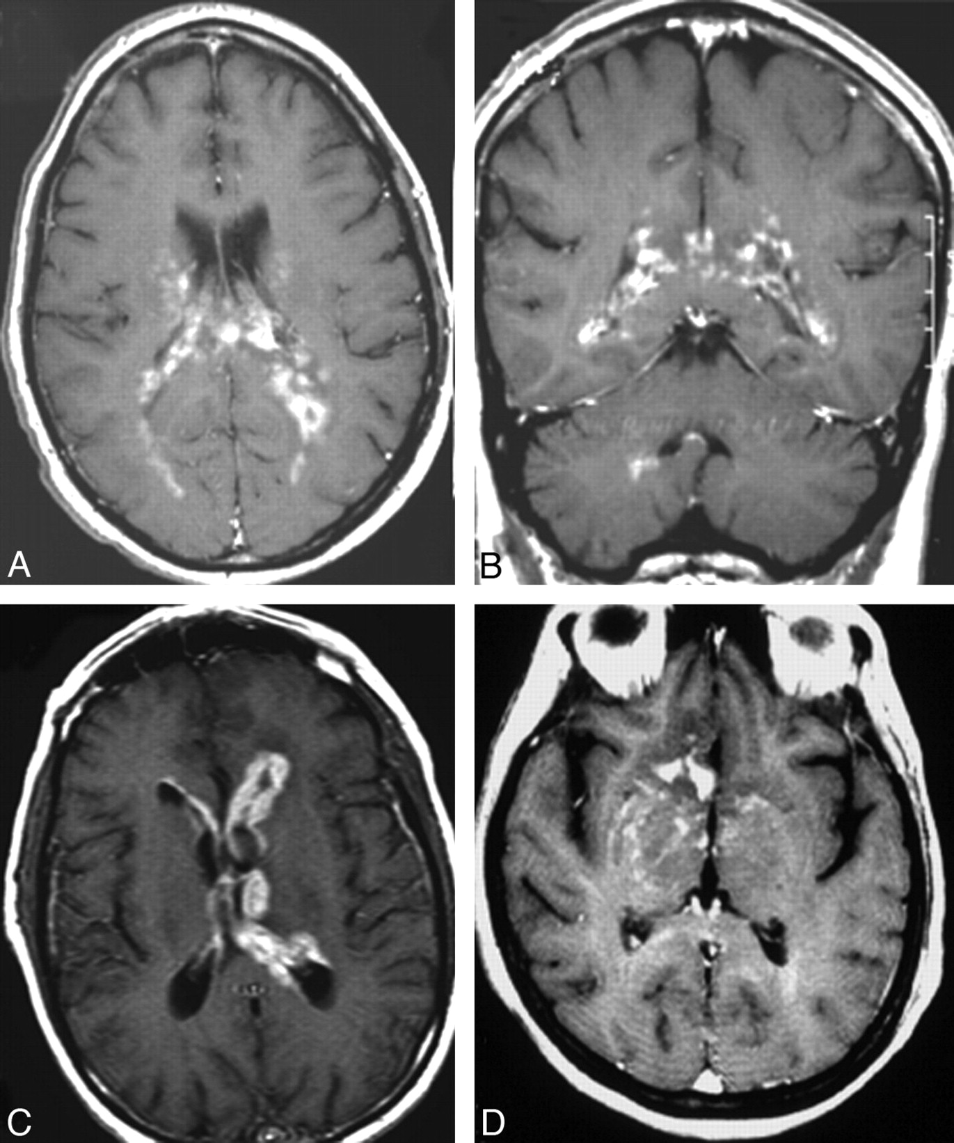 ct and mr imaging features of primary central nervous systemdownload figure