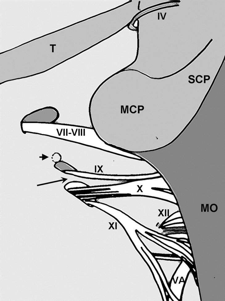 Detailed MR Imaging Anatomy of the Cisternal Segments of the ...