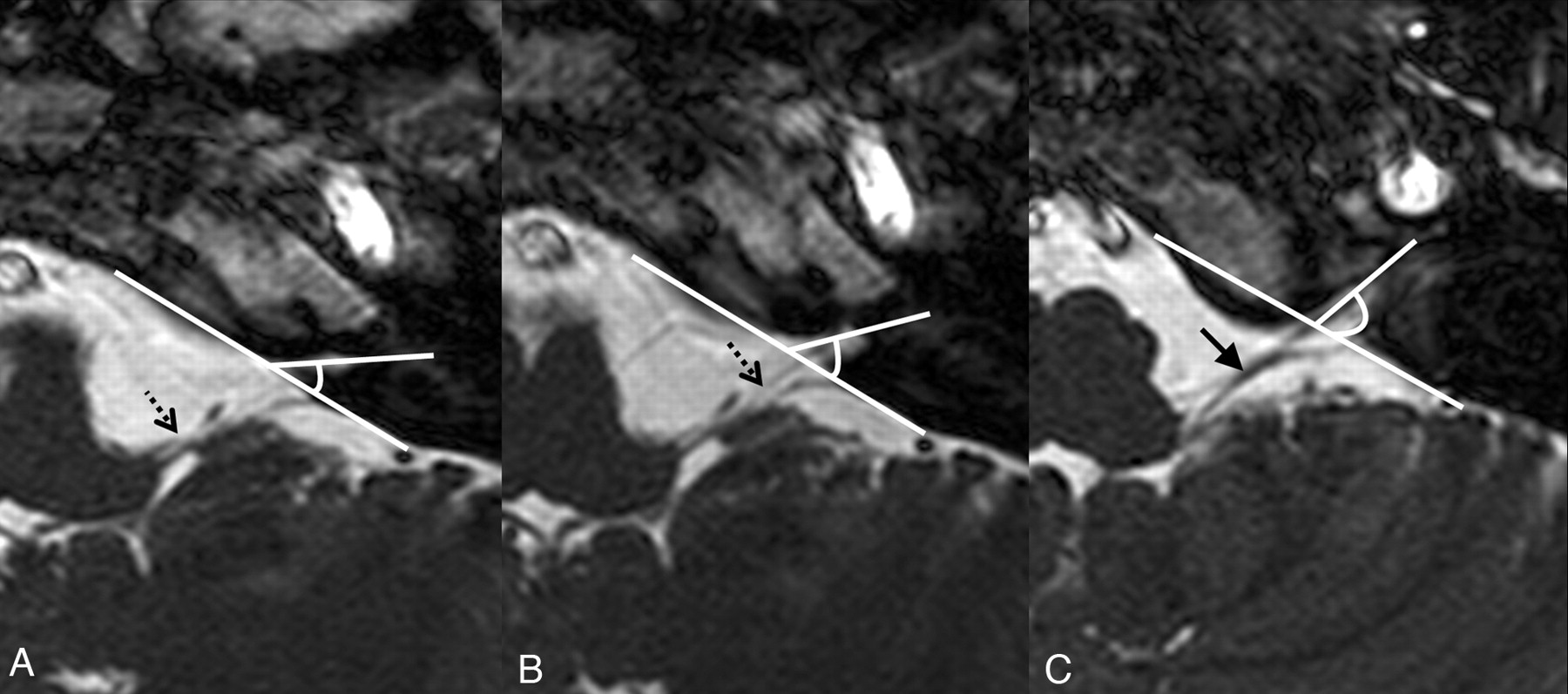 detailed mr imaging anatomy of the cisternal segments of